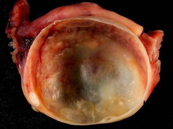 Infertilità femminile e cisti ovariche